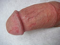A hímvessző bőrbetegségei