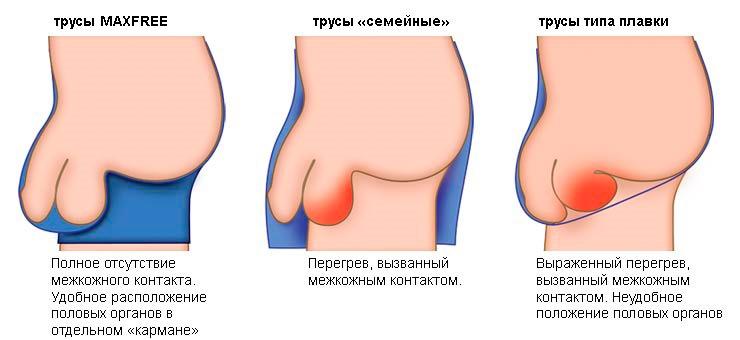pénisz az orvosi enciklopédiában az