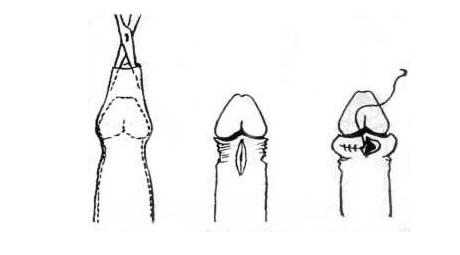 pénisznagyobbító műtét leírása