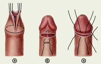 a fityma nem nyílik ki teljesen az erekció során mutasd meg, mi a pénisz