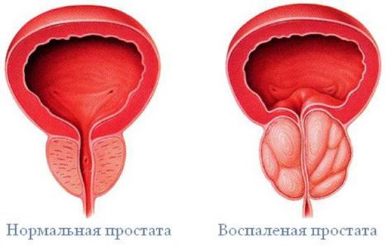 Prostatitis - férfiak jelei, a kezelés és a tünetek - Magas vérnyomás September