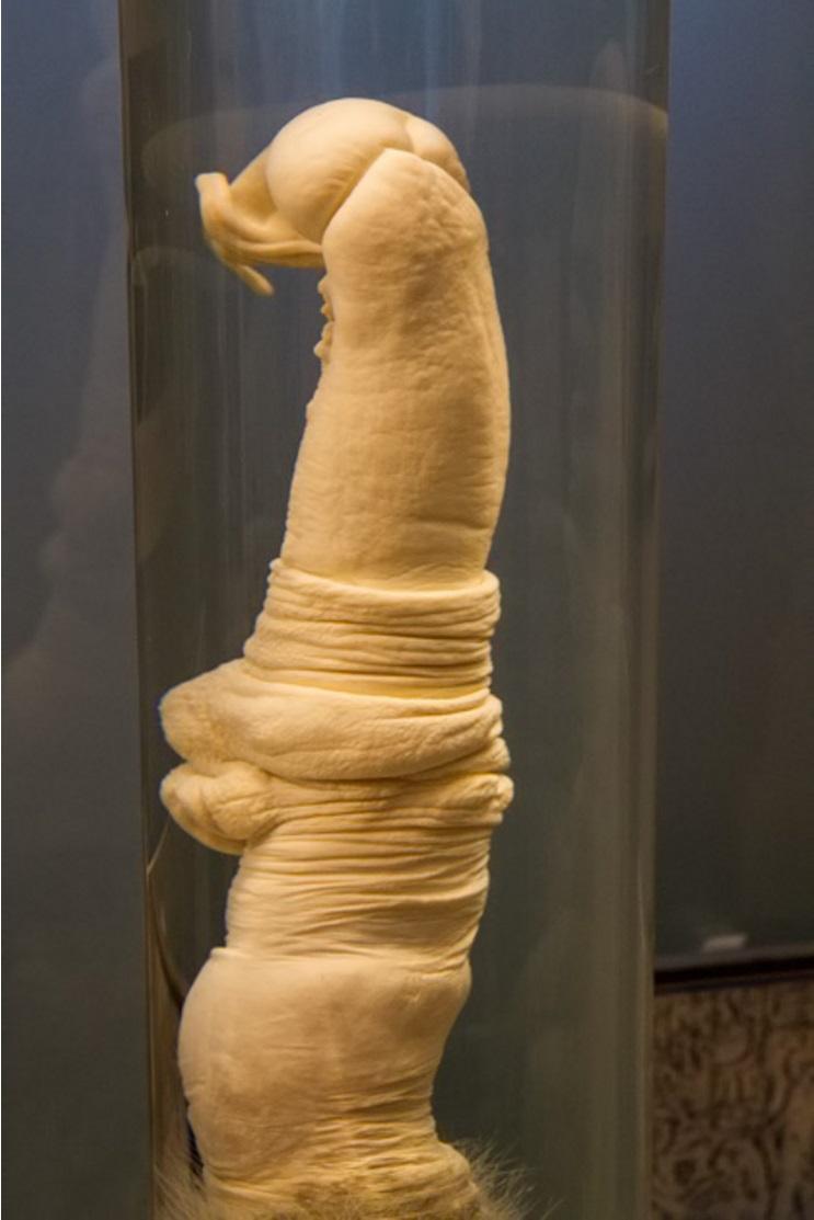 Ingyen megmutatjuk azokat a péniszeket, amikért máshol fizetnie kéne - Galéria - Blikk