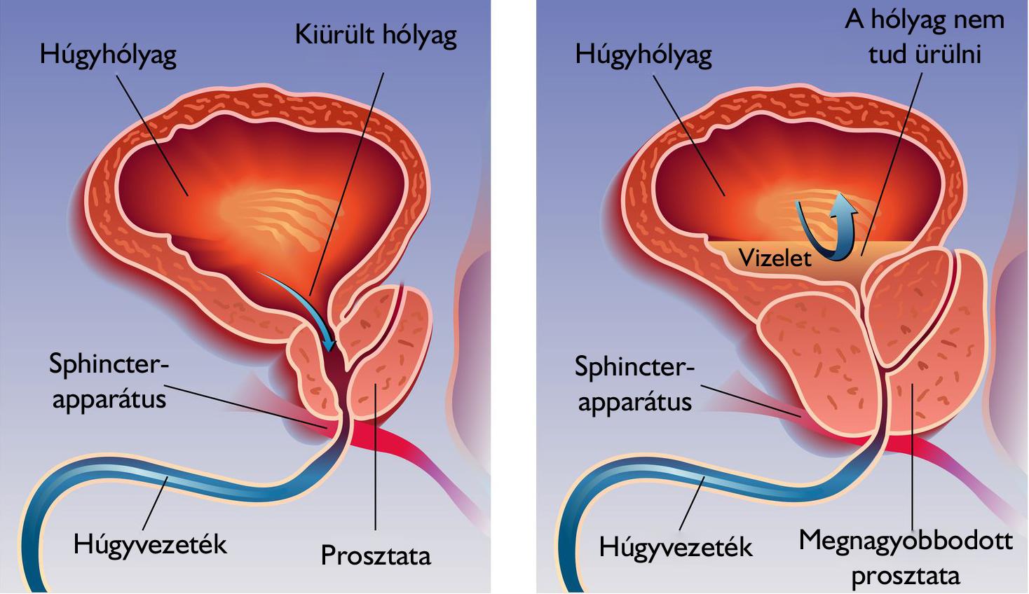 erekciós kezelés prosztatagyulladás után erekció lehetséges-e a kasztrálás után