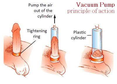 hogyan kell helyesen használni az erekciós szivattyút