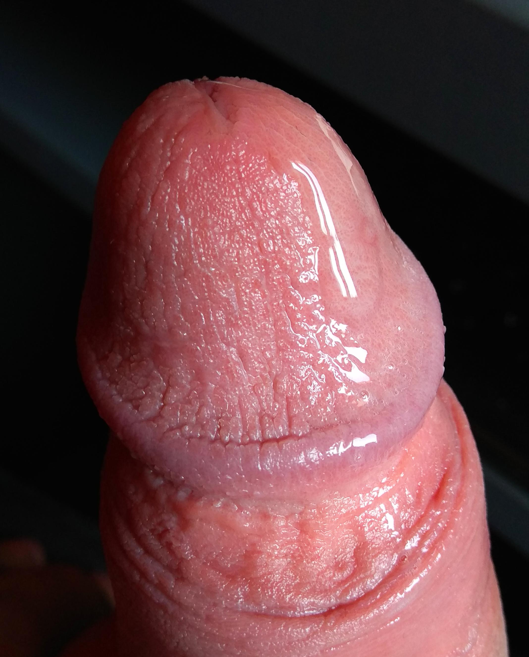 mi lehet a pénisz görbületének oka