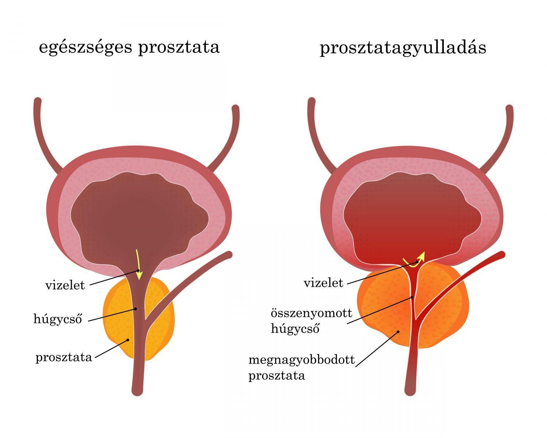 prosztatagyulladás és elhúzódó erekció aranyér zavarja az erekciót