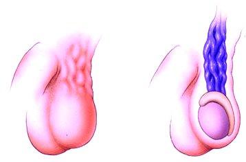 varicocele és merevedés