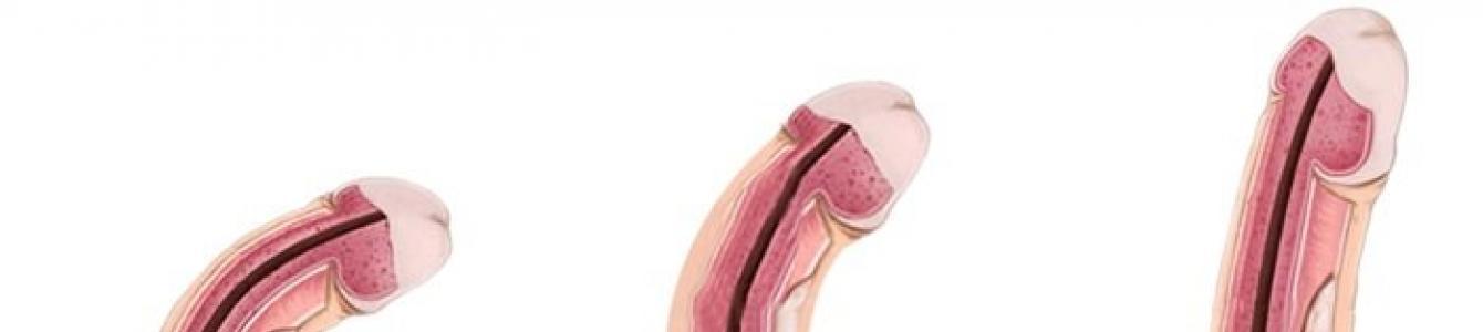 hogyan lehet meghatározni a pénisz szélességét a pénisz átlagos hossza az erekció során