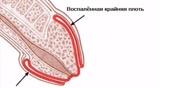 kapilláris a péniszen