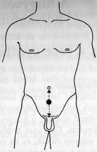 a fityma nem nyílik ki teljesen az erekció során